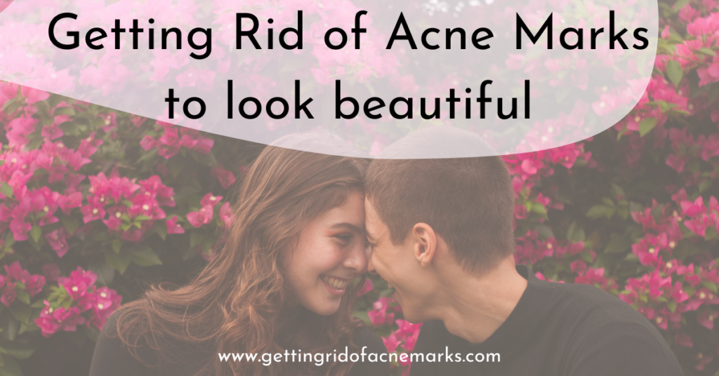 Getting Rid of Acne Marks to look beautiful